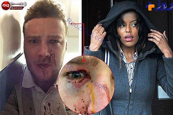 ماجرای چاقوکشی دختر دانشجو بخاطر توهین پسر جوان +عکس