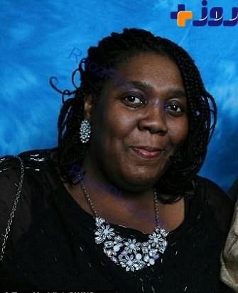 در اتفاقی نادر، شیمی درمانی یک زن سیاهپوست را سفید پوست کرد! +تصاویر