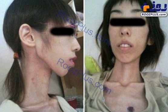 عکس/ شکنجه وحشتناک دختر ژاپنی با کاهش وزن!