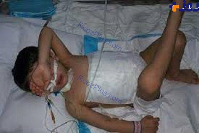 کودک 5 ساله که شکمش توسط گرگ دریده شده بود، درگذشت+ عکس