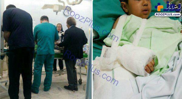 پیوند دست کودک سرپل ذهابی در عمل جراحی نادر/عکس