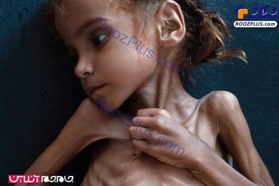 عکس/ مرگ دختری که تصویرش جهان را تکان داد