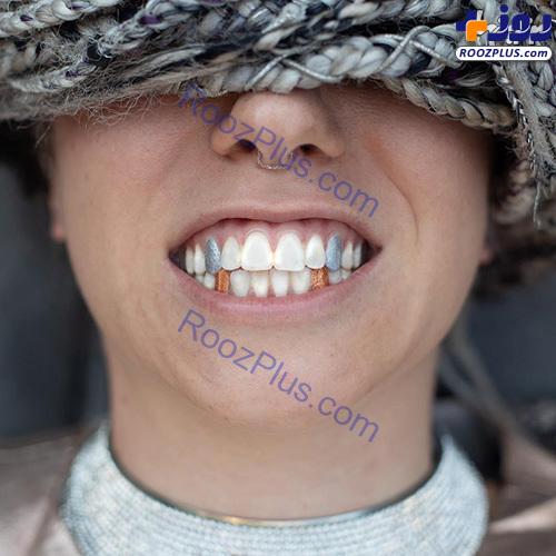 دندانهای رنگی؛ مد جدید این روزها!