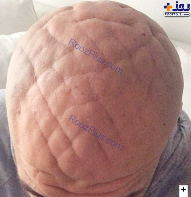 خطوط عجیب و غریب روی سر مرد ایتالیایی +عکس