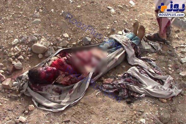 (18+)تصاویر دلخراش اجساد تکهشده مردم یمن +عکس