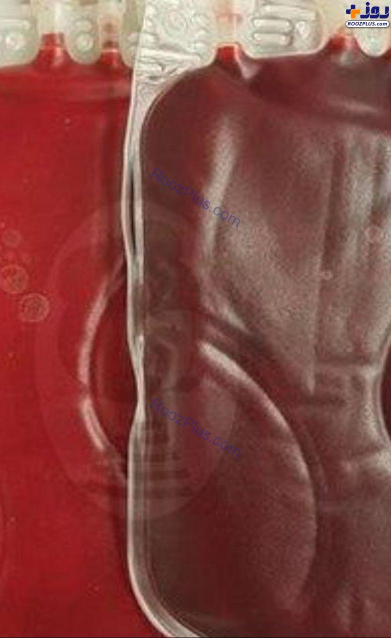 فرق خون انسان عادی و یک انسان سیگاری+عکس