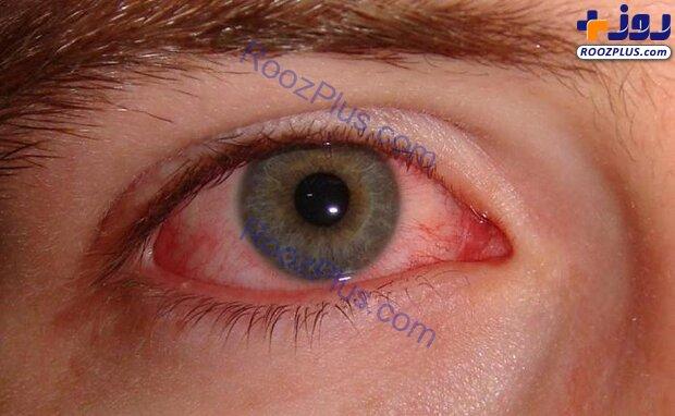 عارضه «چشم صورتی» علامت بیماری کرونا است؟ +عکس