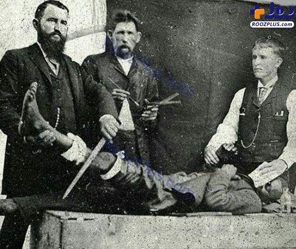 بیهوش کردن عجیب بیماران ۱۲۰ سال پیش برای قطع پا! +عکس
