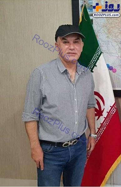 جراحی زیبایی عجیب و غریب  روی صورت فوتبالیست ایرانی /عکس